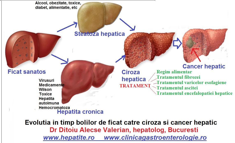 Ciroza hepatica: cauze, simptome, tratament