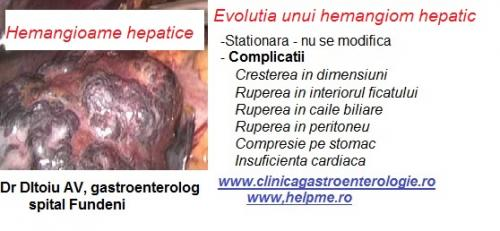 Hemangiomul hepatic