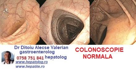 Colonoscopie imagini