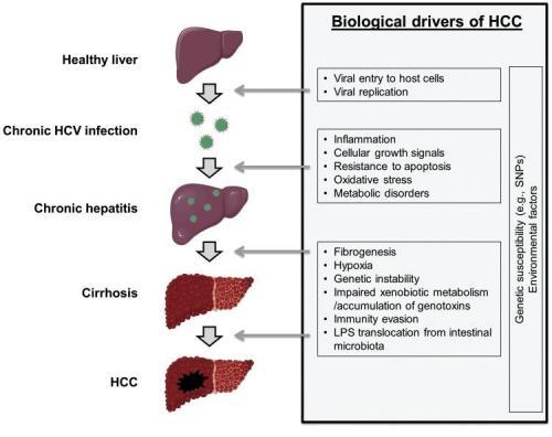 Riscul de cancer vhepatic in infectie cu virus C (1)